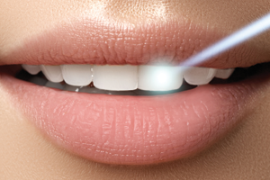 A laser whitening a woman's teeth