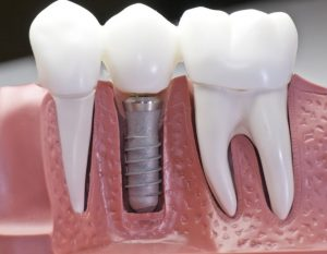 Dental Implants OKC