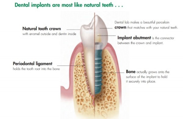 Dental Implant Diagram in OKC