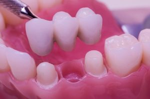 Dental Bridges OKC