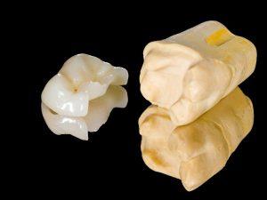Dental Inlays and Onlays OKC