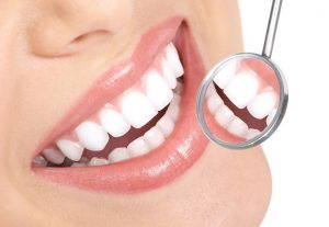 Laser Teeth Whitening in Oklahoma City