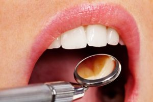 Root Canals OKC