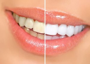 Teeth Whitening in OKC