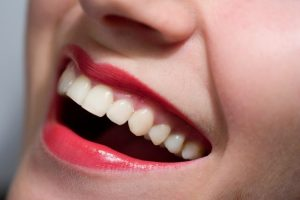 Dental Fillings in Oklahoma City