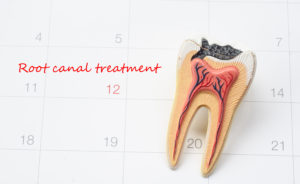 A decayed tooth on a calendar date of when the patient is getting root canal treatment