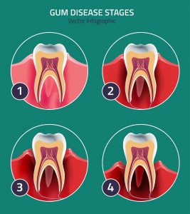 Dental effects of missing teeth
